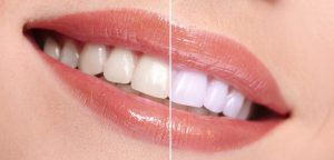 mejores blanqueadores dentales baratos