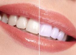 Los mejores blanqueadores dentales baratos: NUESTRO TOP 5